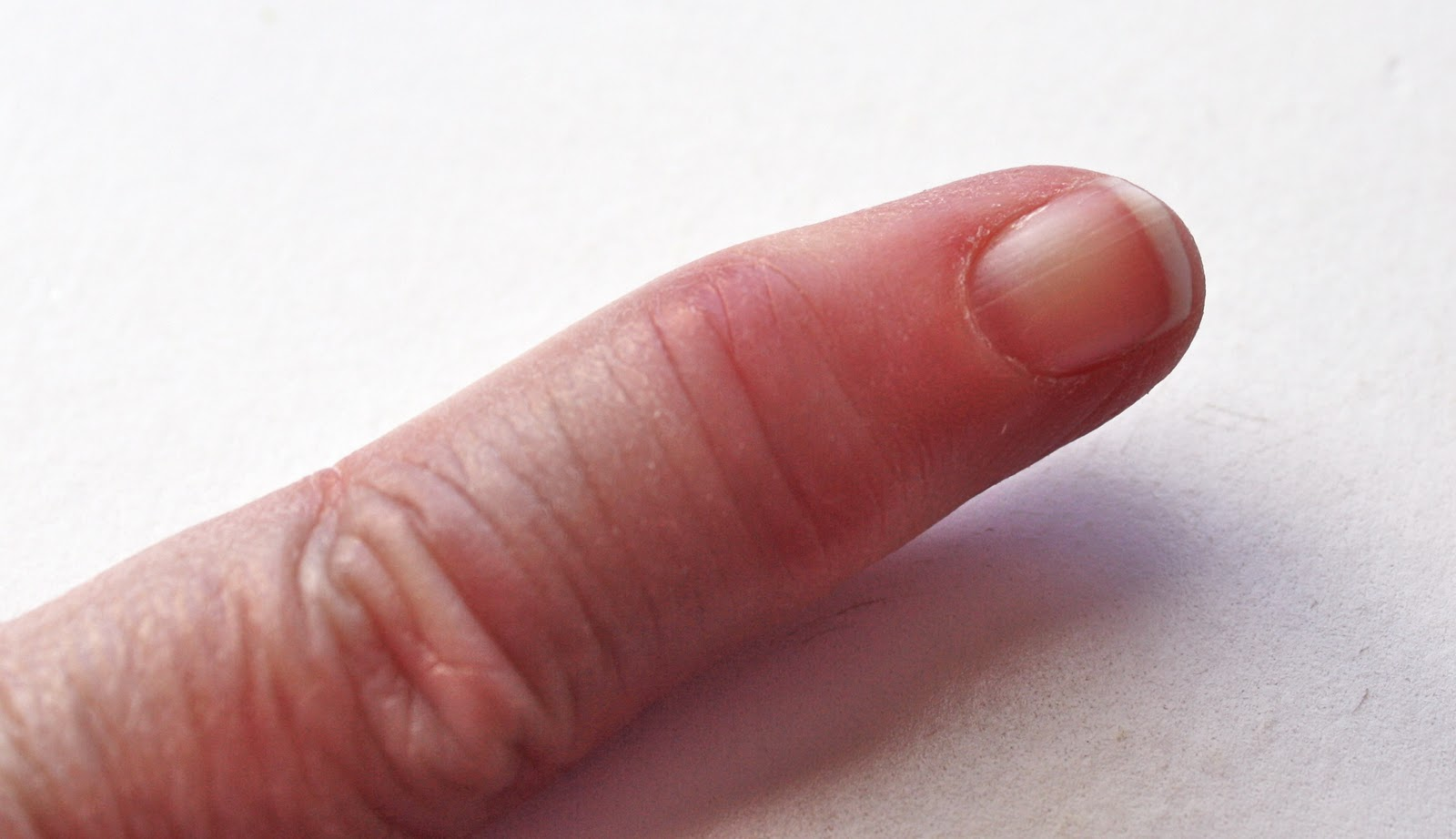 Reasonably Well: Psoriatic Arthritis