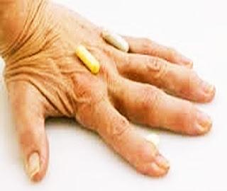 Tratamiento de la Artritis - Curso Confecciòn y Manualidades