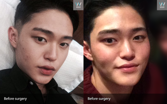 짱이뻐! - Popular Plastic Surgery Review For Male Patients
