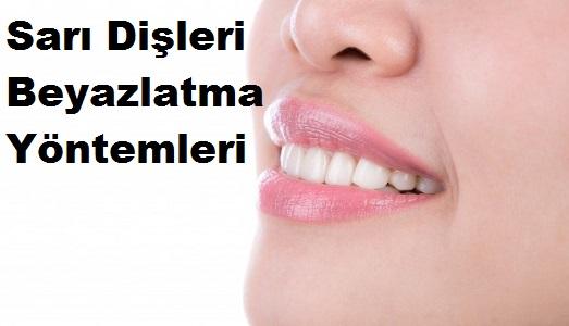 Sarı Dişleri Beyazlatma Yöntemleri