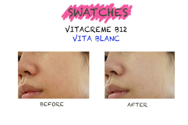 Vita Blanc lightening beauty cream with vitamin B12, vitacreme B12 vita blanc, vita blanc made in switzerland, vita blanc aman dipakai, vita blanc untuk kulit sensitif, vita blanc review, vita blanc untuk jerawat, vita blanc review indonesia, vita blanc before after, vita blanc leonita nerisa review, vita blanc black blue blizzard