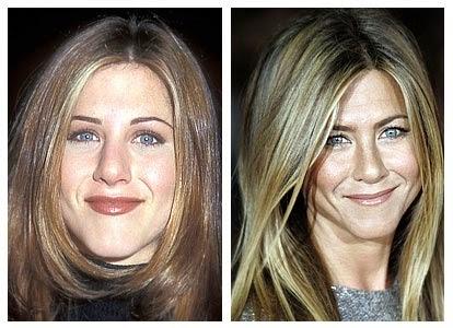 Jennifer Aniston Plastic Surgery Eyelid, Facelift Before ...