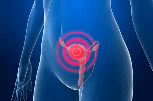 cervical-cancer-and-sex