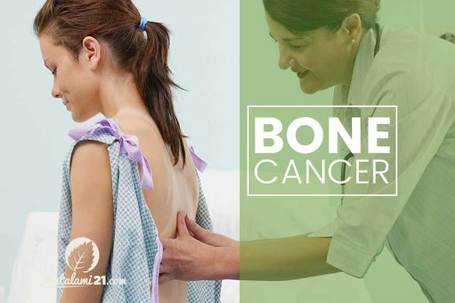Obat Alami Kanker Tulang Tanpa Efek Samping