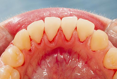 Foto interior mandíbula con Periodontitis