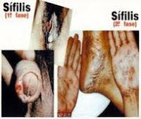 Paling Ampuh Obat Sembuhkan Penis Terkena Sipilis