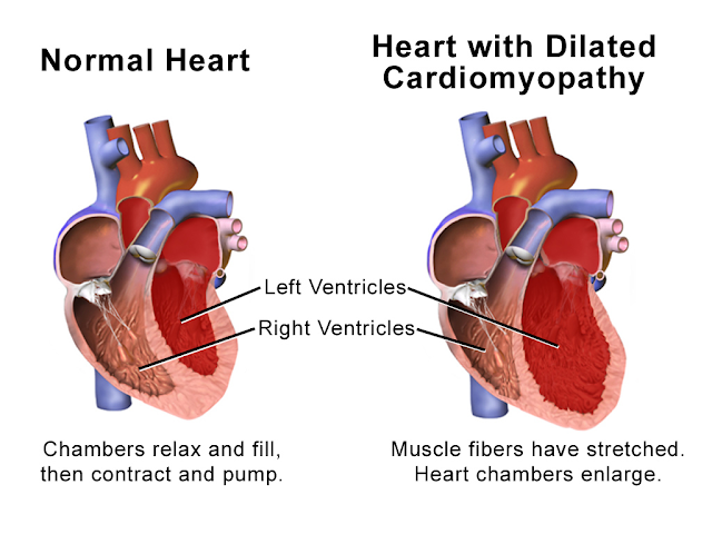 Ilustrasi gambaran kardiomiopati dilatasi dilated cardiomiopathy illustration jantung heart