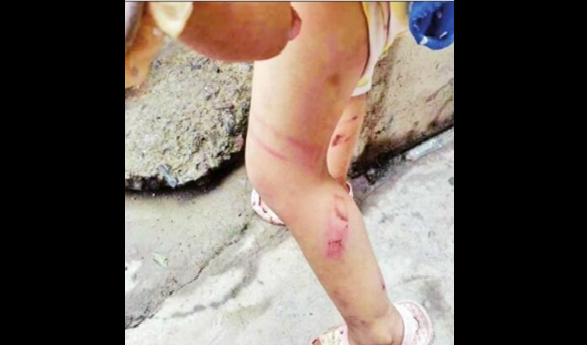 ΦΡΙΚΗ:Σάπισε στο ξύλο τα μικρά παιδιά του για να εκδικηθεί την γυναίκα του! (photos)
