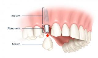 Quy trình trồng răng implant tiêu chuẩn quốc tế
