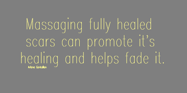 Massaging fully healed scars can promote it's healing and helps fade it.
