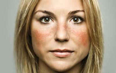 Ciri ciri Penyakit Lupus