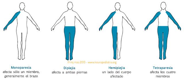 Evaluación del paciente con lesión medular Fisioterapia