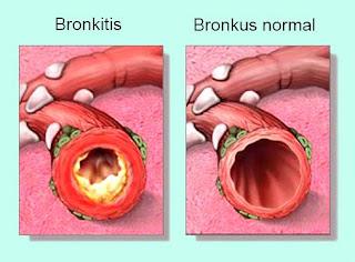 Pengertian Bronkitis