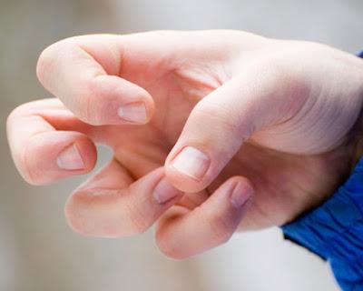Cara Mengobati Penyakit Ayan Secara Alami Tanpa Efek Samping