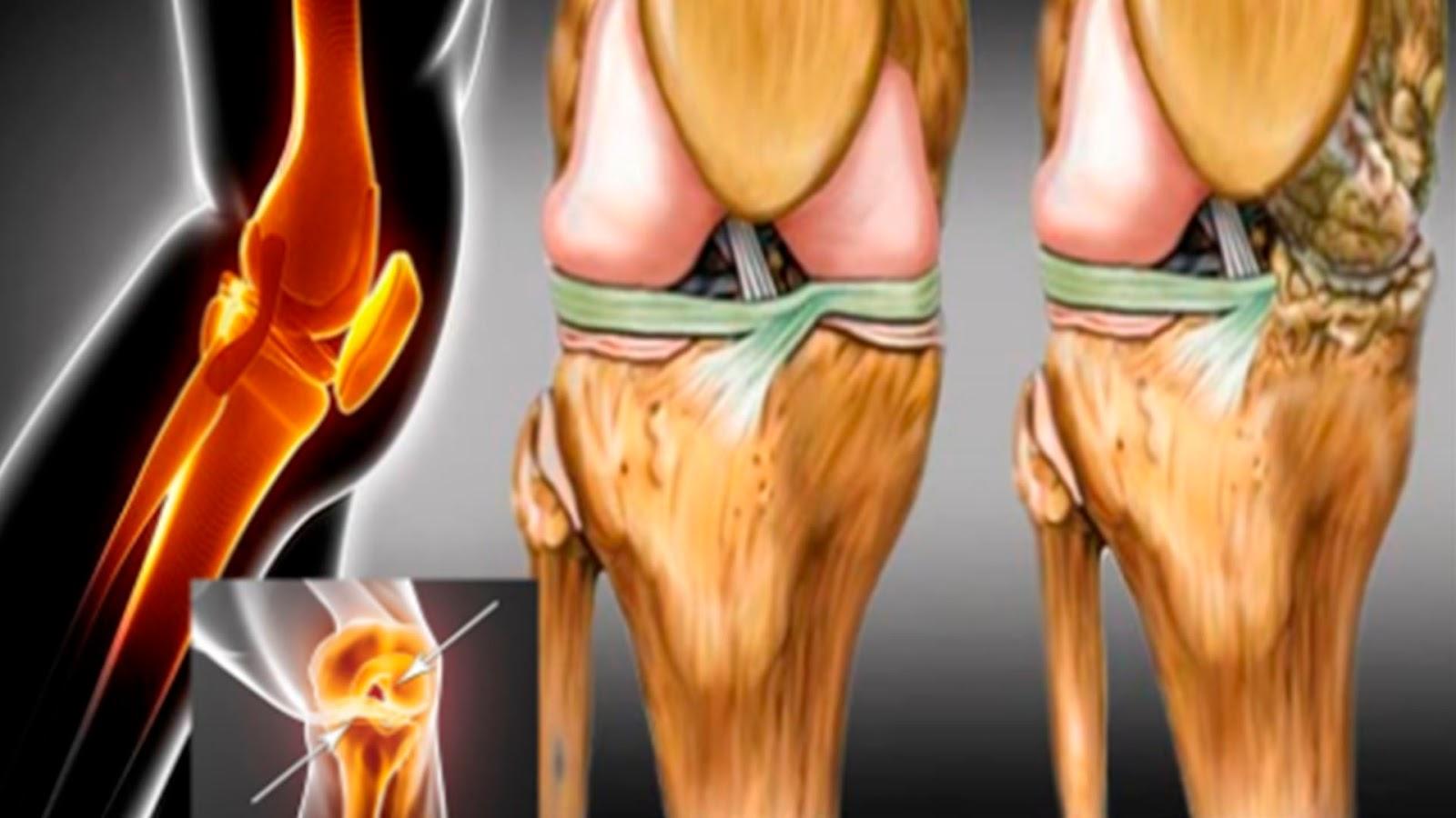 Confirman médicos que los cartílagos de la cadera y rodillas se regeneran en una semana usando estas hierbas