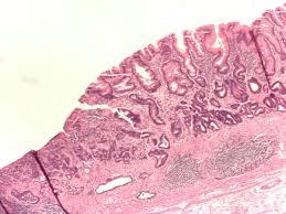 Metaplazi Hücre ve İntestinal Metaplazi Nedir ?