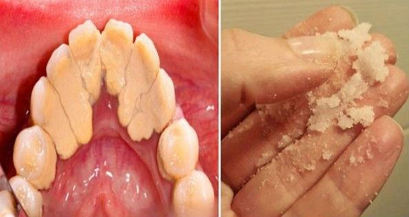 Cara Ampuh Rontokan Karang Gigi Hanya Dalam Hitungan Detik Sebarkan Ya