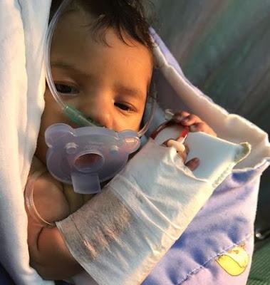 Muere el niño de dos meses que le diagnosticaron cardiopatía congénita