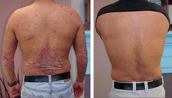 La psoriasis extensa el tratamiento
