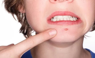 Acne During Ovulation