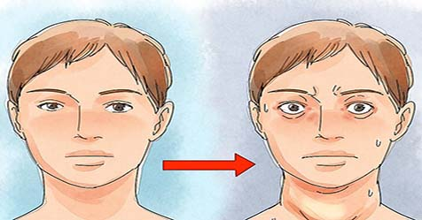 Graves' disease Causes Symptoms and Treatments