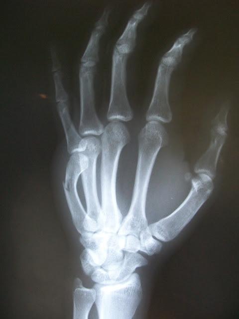 Imagen de La enfermedad de los Huesos de Cristal