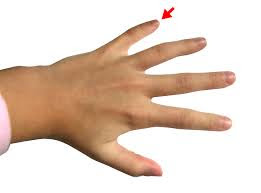 What is the cause of finger pain