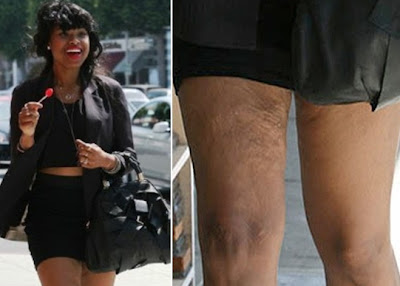 jennifer hudson�s thighs wrinkles loose skin on legs