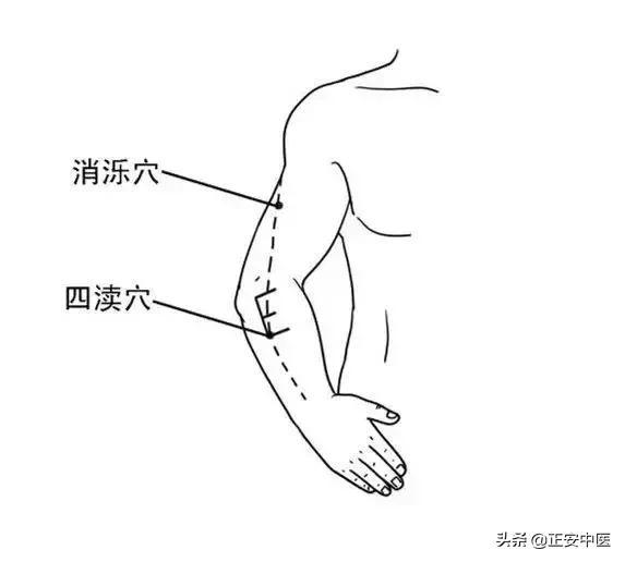偏頭痛,原來可以用經絡輕鬆解決(疏通三焦、膽經)