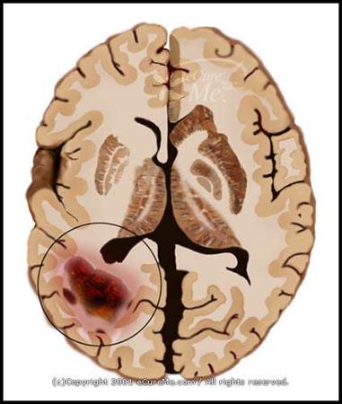 Perbedaan Brain Tumor Jinak & Ganas | Artikel Informasi Baru