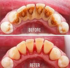 Cara Mudah Hilangkan Karang Gigi Kalian