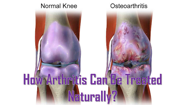 Natural Treatments for Arthritis - How to Reverse Arthritis Naturally