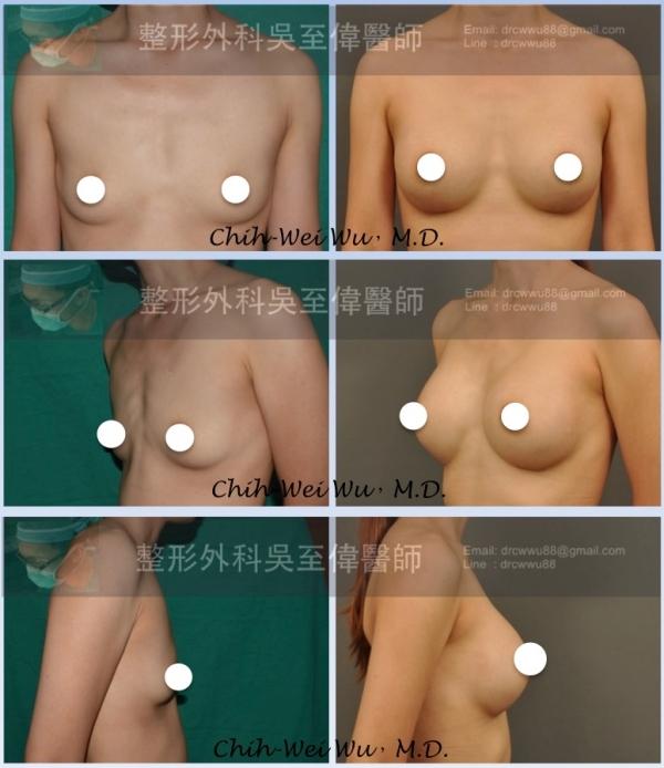 ▲此隆乳案例採用胸下緣切口,絨毛面果凍矽膠。