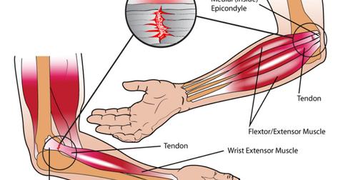 Langkah Pengobatan Tennis Elbow Secara Alami