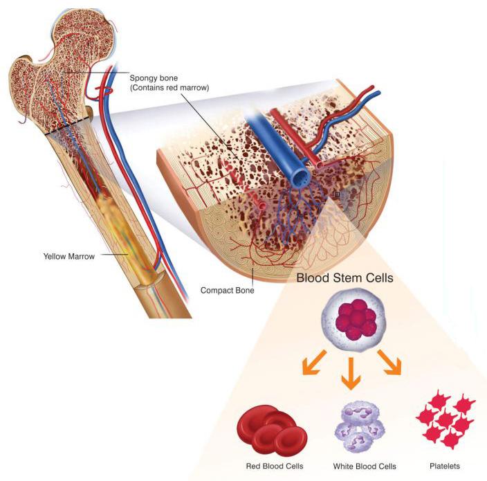 myeloproliferative disorder, myelodysplasia
