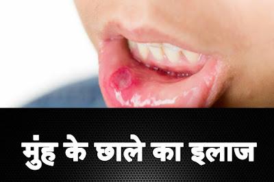 Mouth ke chhale ka elaj