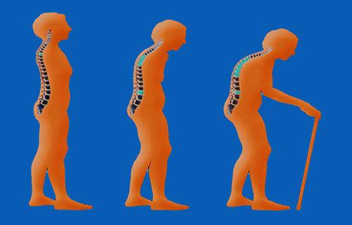 Penyakit Osteoporosis (Pengeroposan Tulang)