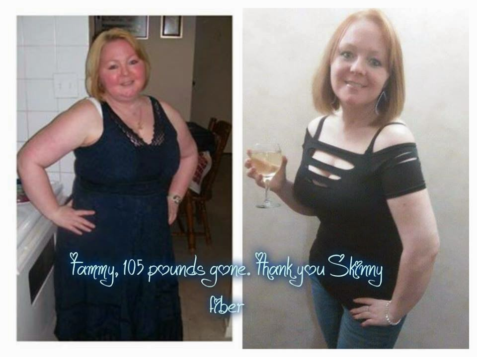 Tammy lost 105 pounds with Skinny Fiber.