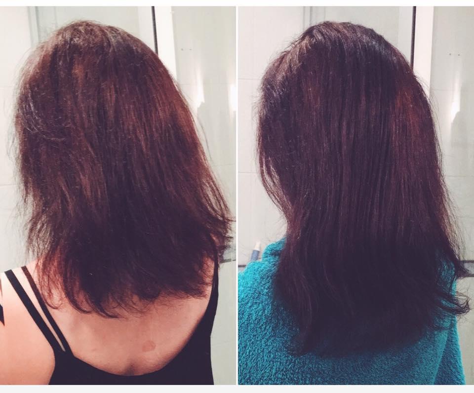 sposób na wypadające włosy po narkozie