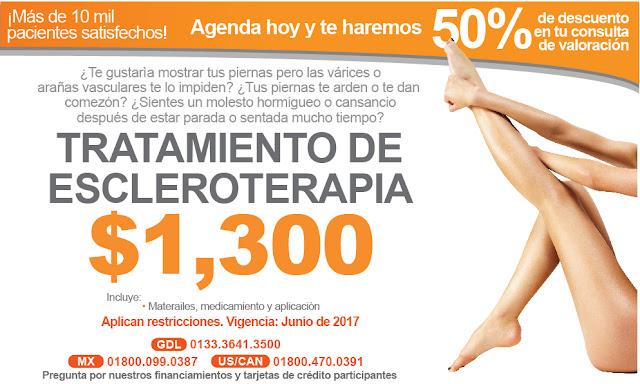 tratamiento para varices arañitas en piernas con escleroterapia laser en guadalajara mexico