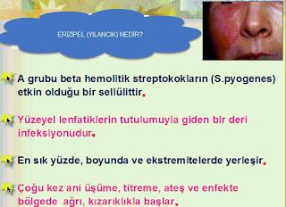Yılancık (Erizipel) hastalığı