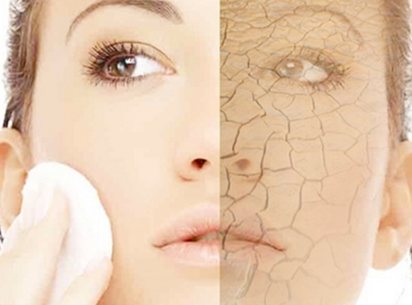 Naturally Moisturizing Home Remedies for Dry Winter Skin!