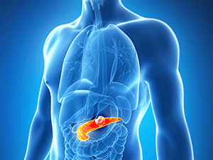 Pancreatic Cancer Diet