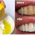 Sudah Terbukti..!! Gigi Putih Hanya Dalam Waktu Hitungan Menit Saja. Berikut Ini Caranya...