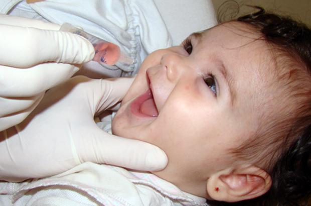 Poliomielite,sintomas e transmissão e prevenção