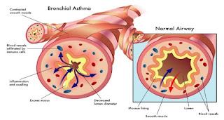 Cara Mengobati Penyakit Asma Dengan Herbal
