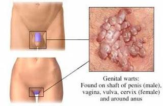 penis tumbuh bintik jerawat