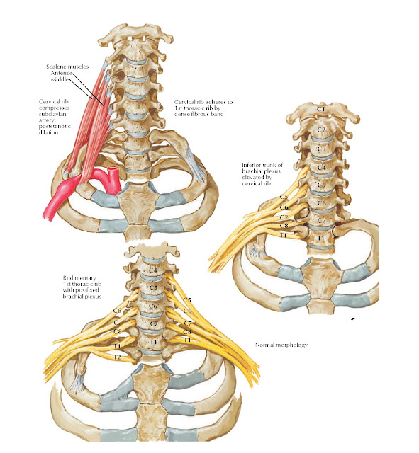 Cervical Ribs and Related Anomalies Anatomy