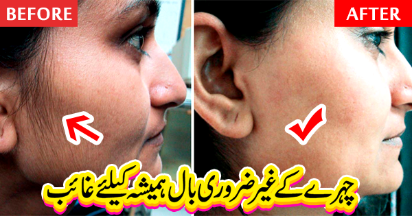 Remove Unwanted Hair from Face, Remove Unwanted Hairs from Face, facial hair removal for women, best facial hair removal, remove facial hair,