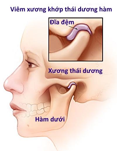 Bệnh viêm khớp thái dương hàm có chữa được không - hình 1